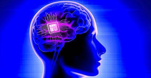 Un implant cérébral personnalisé utilisé avec succès pour le traitement de la dépression
